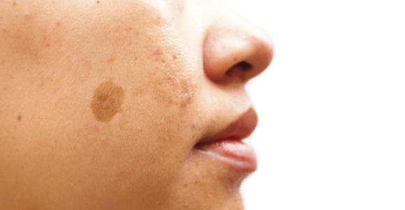 laser pigmentation treatment