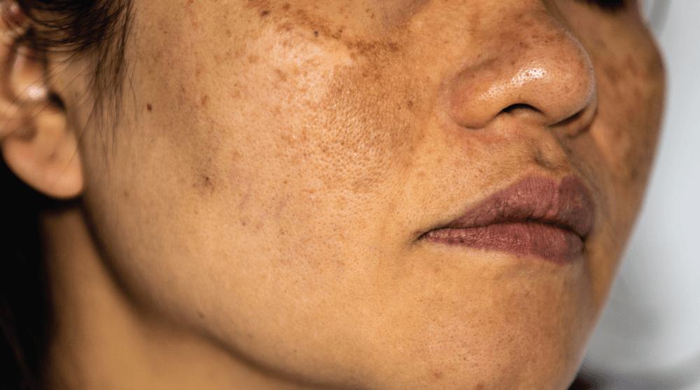 Hyperpigmentation for Asian skin