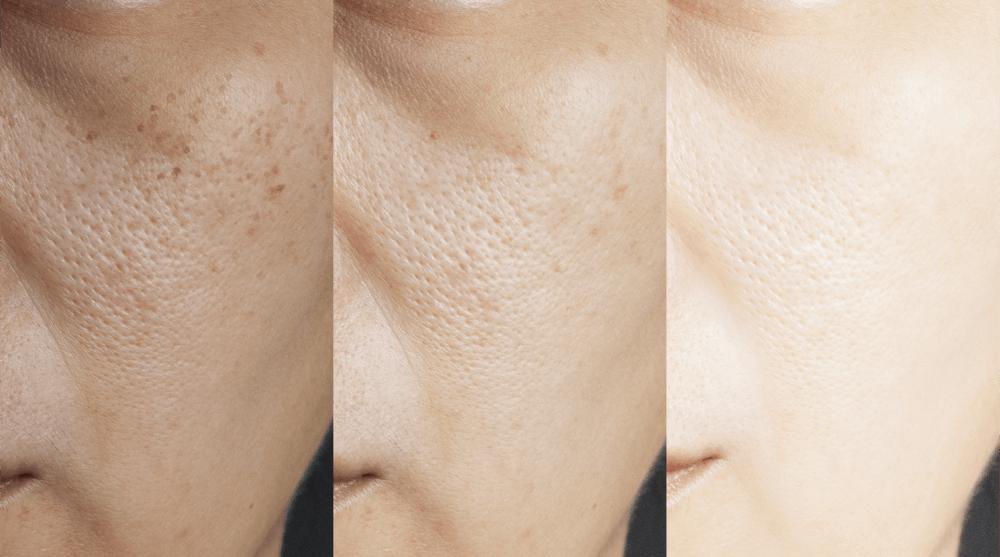Pore Size Reduction Treatment