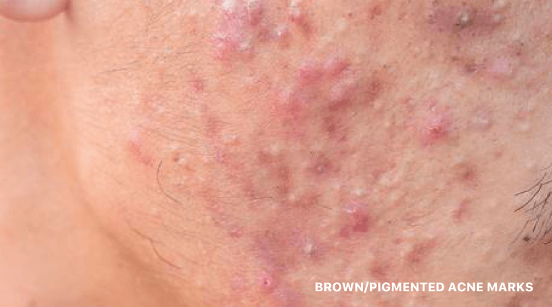 Brown/Pigmented Acne Marks/Scars