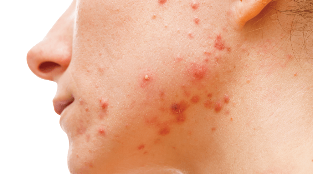 What is acne and its impacts on health?