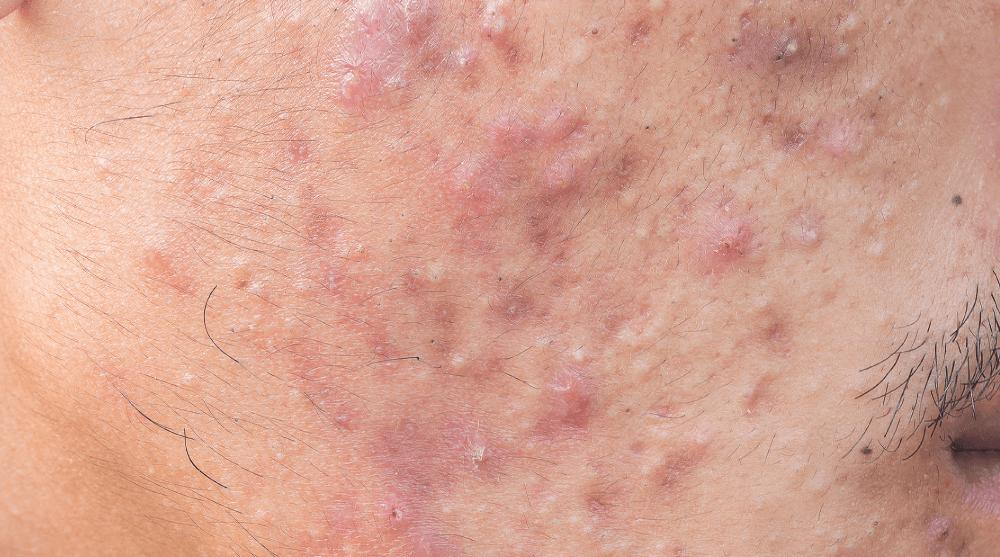 pigmentation removal treatment malaysia