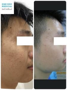 acne-10