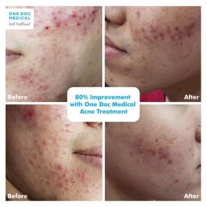 acne-11