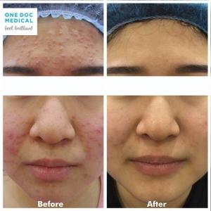 acne-5