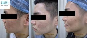 acne-7