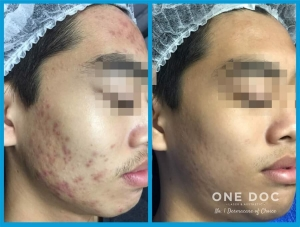 acne testi1