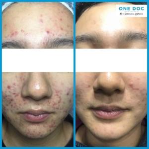 acne testi2