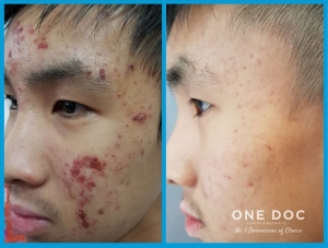 acne testi3