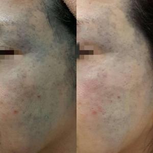 pigmentation-10