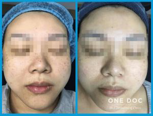 pigmentation testi 1