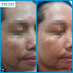 pigmentation testi 2
