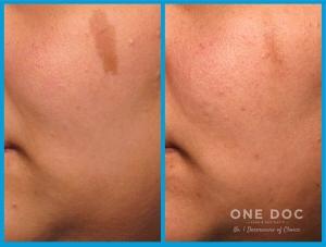 pigmentation testi 3